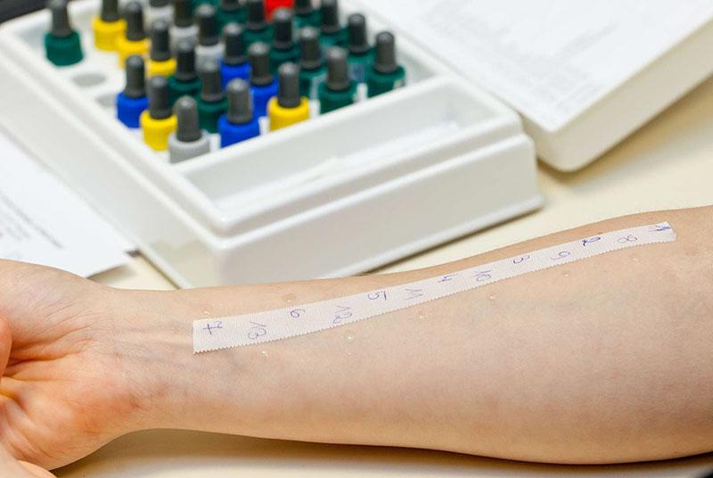 alergia testy z krwi cena
